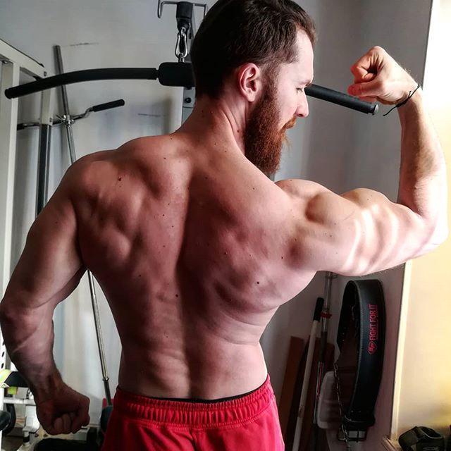 blessures en musculation
